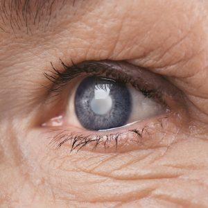 лечение катаракты киев