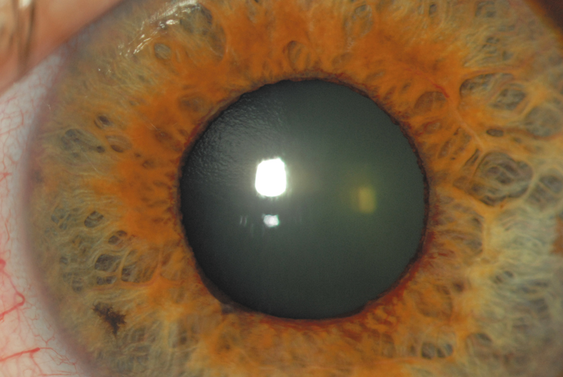 глаукома ока