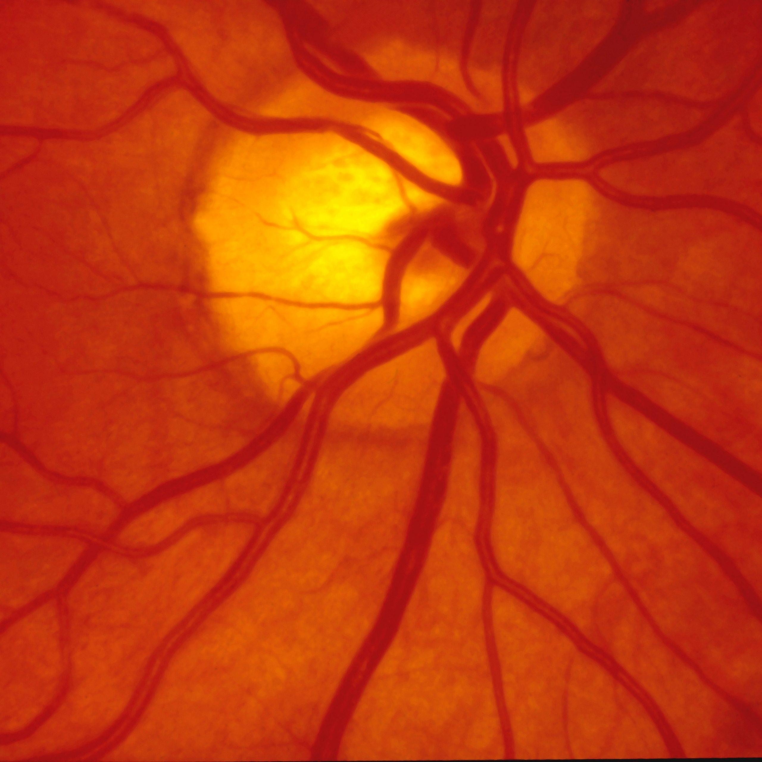 Normal Human Retina