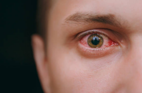 красные глаза фото