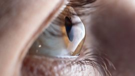 Keratoconus Lenses